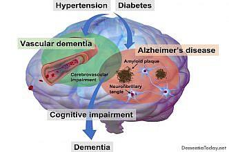 Novel compound keeps Parkinson's symptoms at bay in mice