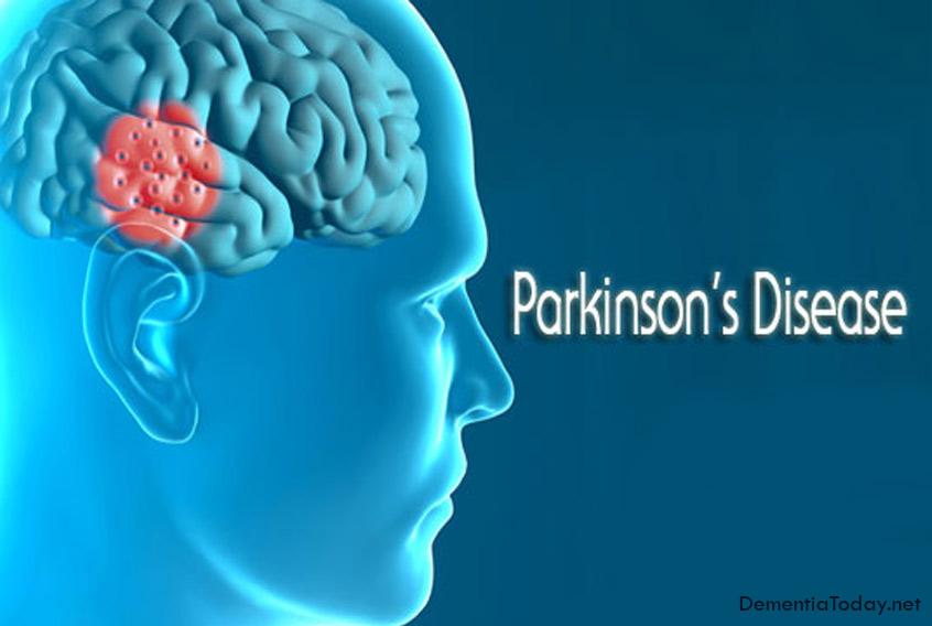 Parkinson gene: Nerve growth factor halts mitochondrial degeneration