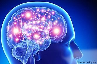 Mere expectation of treatment can improve brain activity in Parkinson's patients