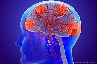 Caring for Someone with Alzheimer's During the COVID-19 Outbreak: 5 Tips