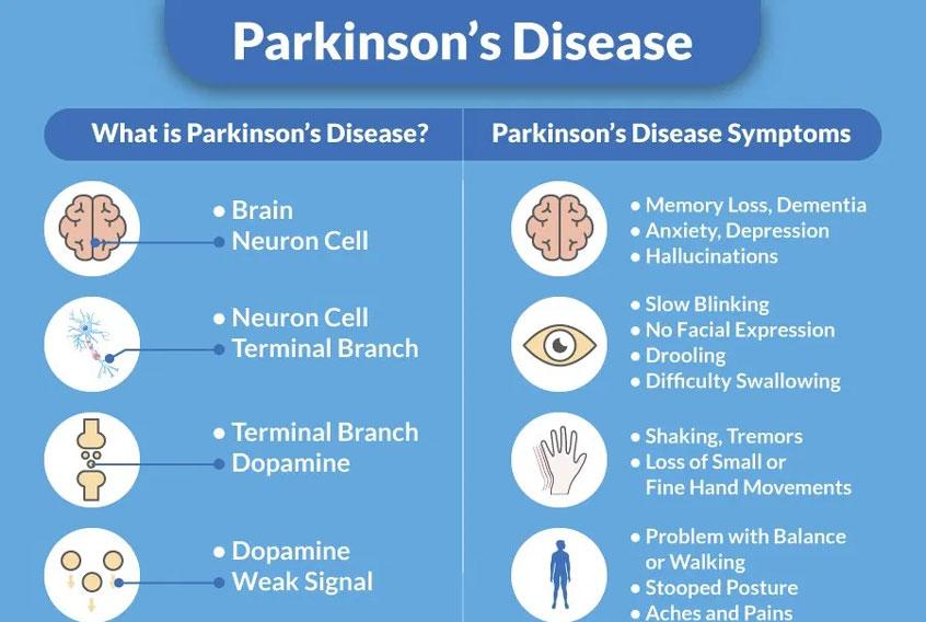 Parkinson's Disease Dementia
