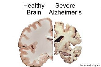 Scientists isolate genes that delay Alzheimer's