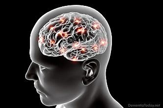 Two Alzheimer's risk genes linked to brain atrophy, promise future blood markers