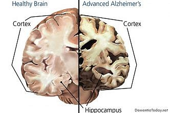 Alzheimer's disease: Early biomarker defined
